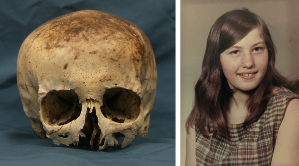 [IMAGE] Skull [Left] of Wanda Ann Herr [Right]